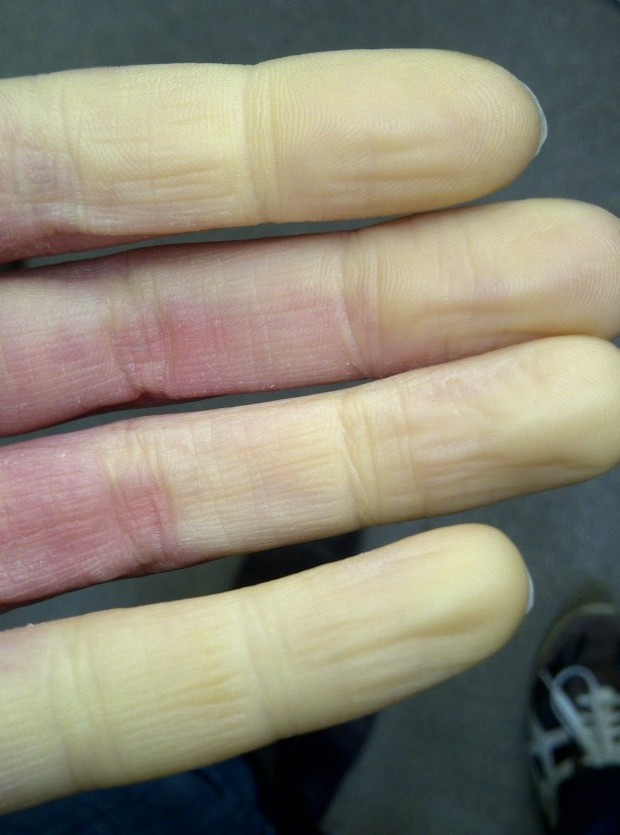 Exercise and Raynauds phenomenon | Hillcliff Personal Training North London - Barnet